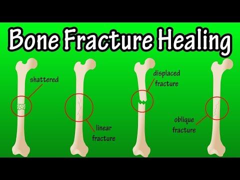 How Does A Bone Break Heal.