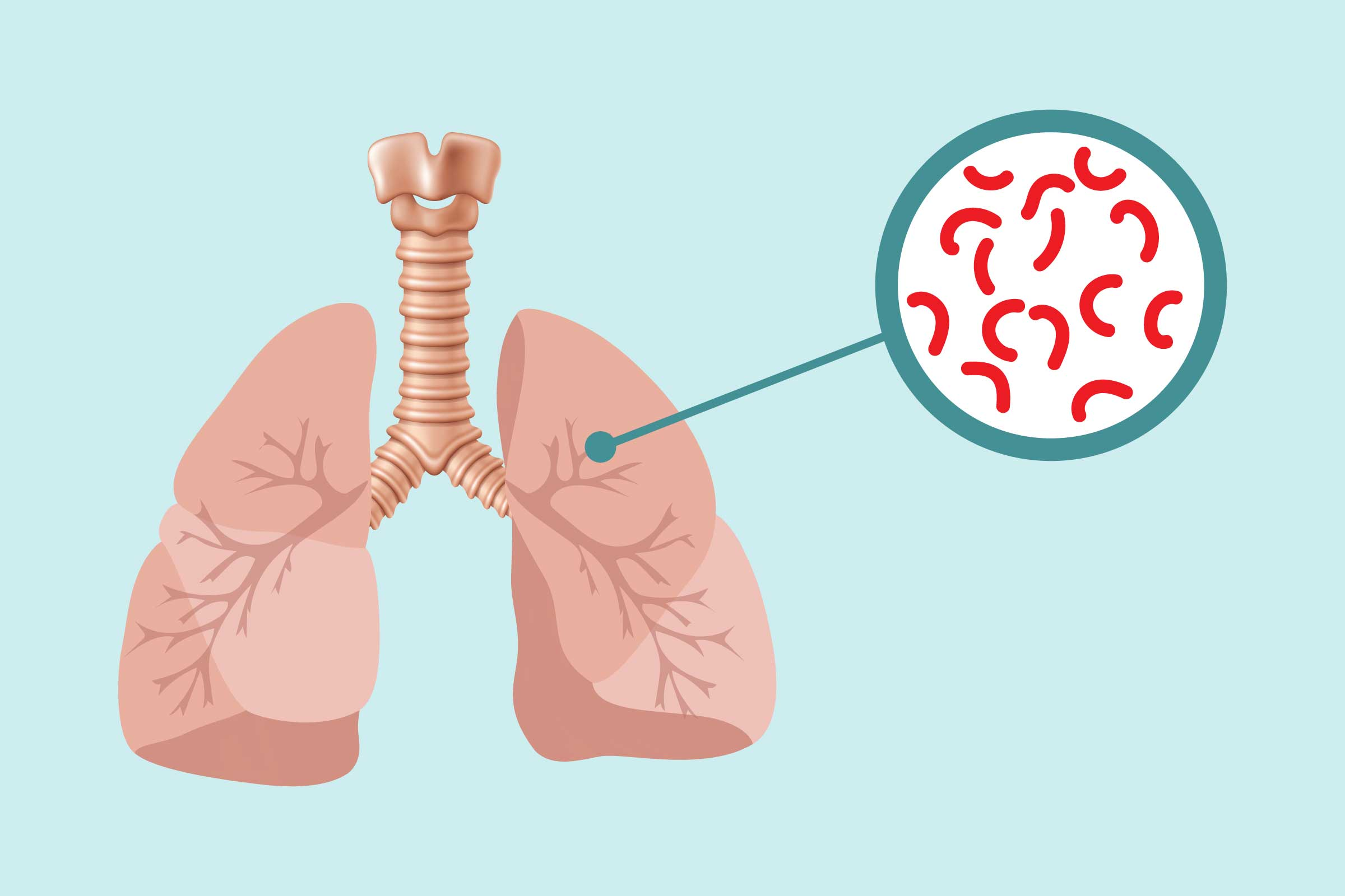 Lungs clipart tb patient, Lungs tb patient Transparent FREE.