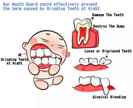 Professional Mouth Guard, Land Rich Stops Teeth Grinding & Tmj Eliminates  Teeth Clenching and Mouldable.