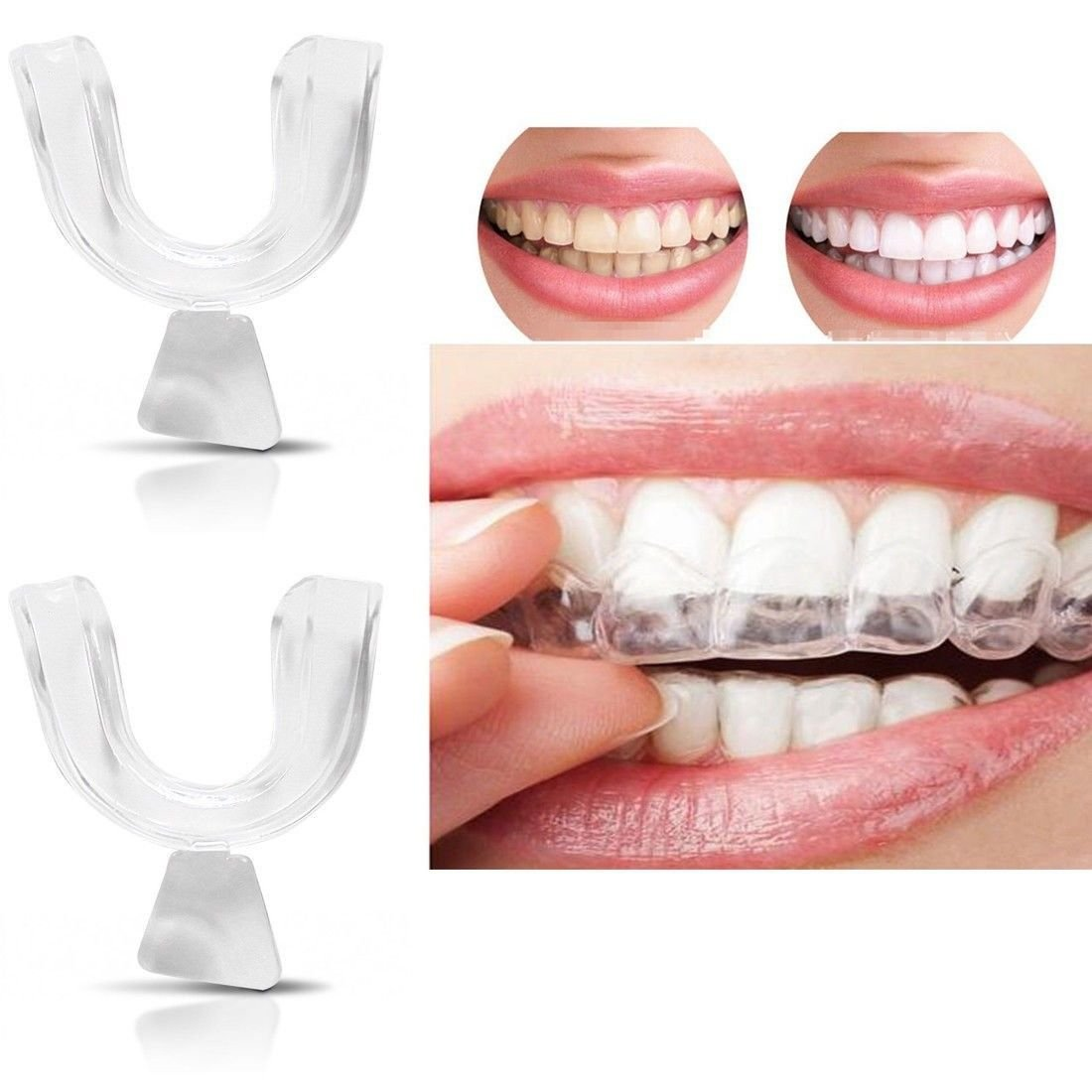 Bhbuy 4pcs Silicone Night Mouth Guard for Teeth Clenching Grinding Dental  Bite Sleep Aid.
