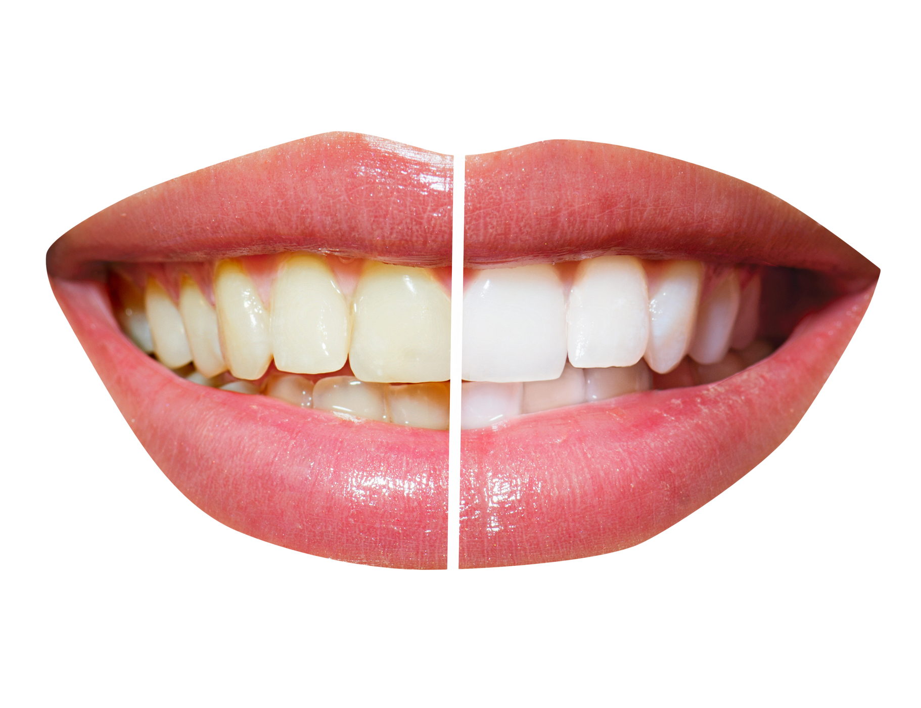 Teeth PNG File #46535.