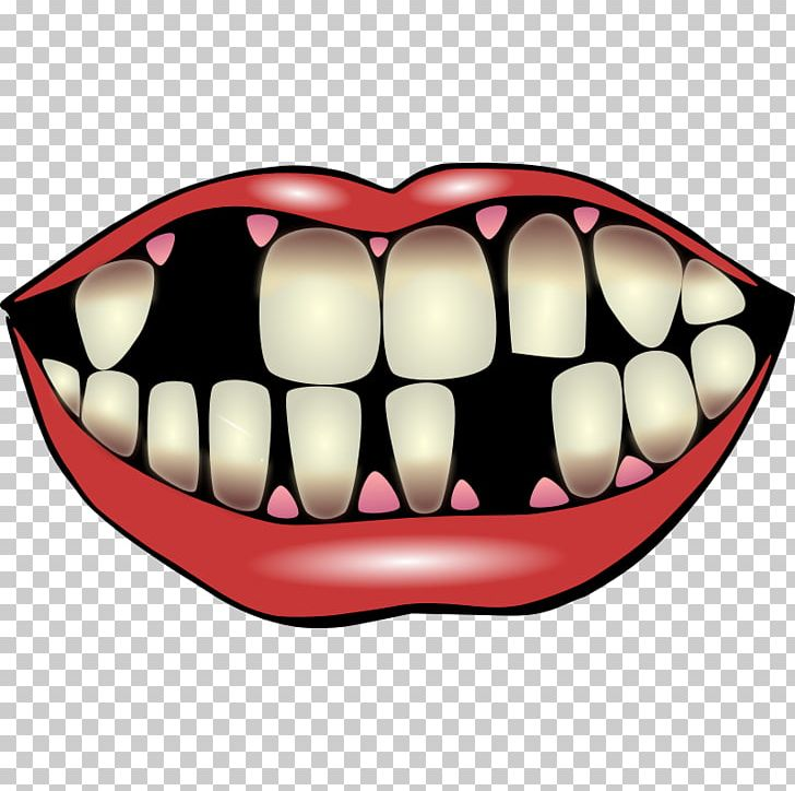 Joker Smile Tooth PNG, Clipart, Clip Art, Dentistry, Images.