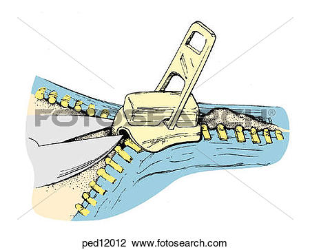 Clip Art of A wire cutter may be used to cut the median bar of the.