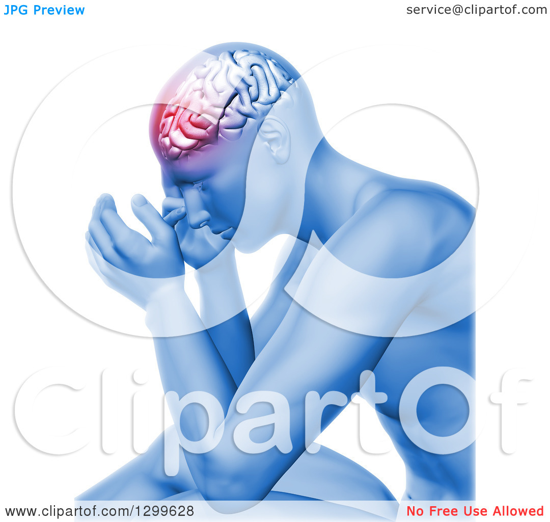 Clipart of a 3d Anatomical Man with Head Pain and Visible Brain.