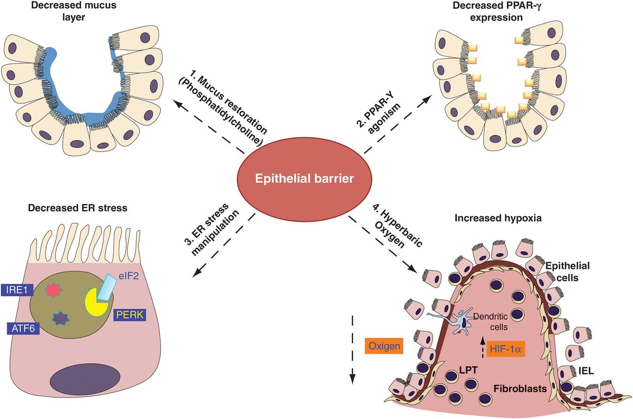 New therapeutic avenues in ulcerative colitis: thinking out of the.