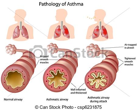 Clipart Vector of Anatomy of Asthma.