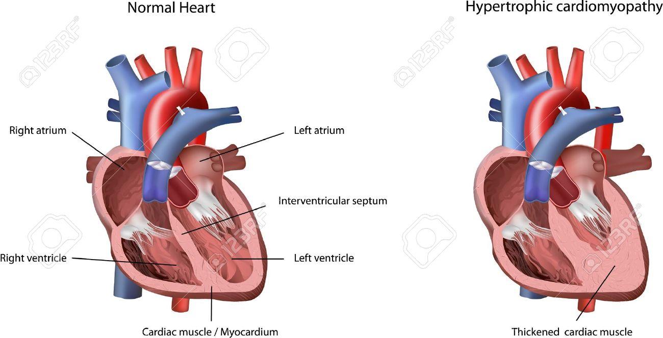 Heart Problem Hypertrophic Cardiomyopathy Illustration. The Heart.