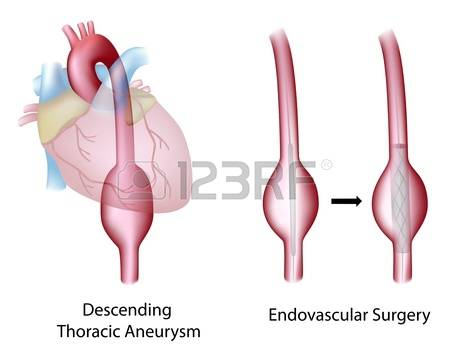 119 Thoracic Surgery Stock Vector Illustration And Royalty Free.