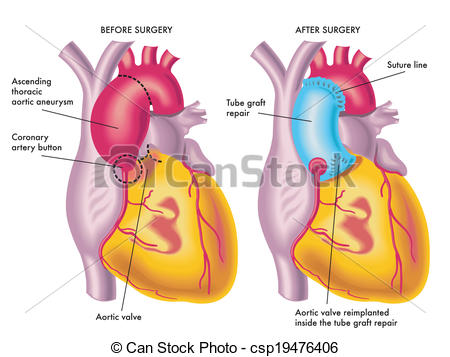 Vector Clipart of thoracic aortic aneurysm.