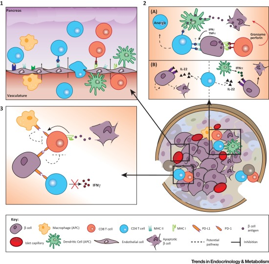 Immune and Pancreatic β Cell Interactions in Type 1 Diabetes.