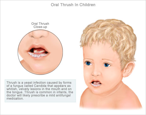 Oral Thrush : Definition, Causes, Symptoms, Diagnosis, Preventive.