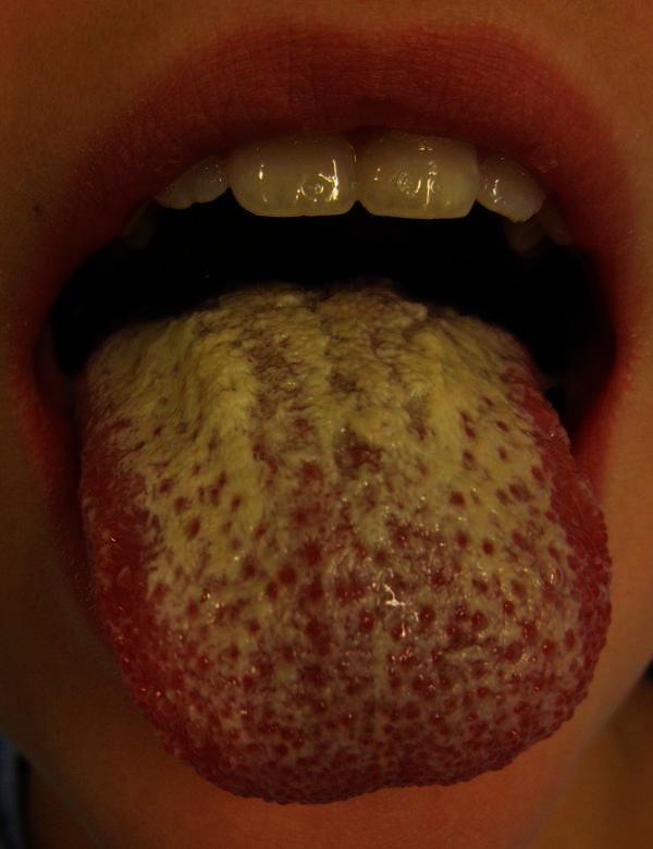 Treating Oral Thrush At Home.