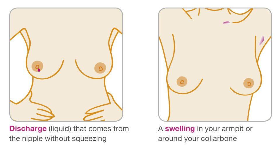 What is breast cancer? Symptoms, signs and treatment.