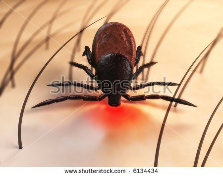 Tick Bite Stock Images, Royalty.