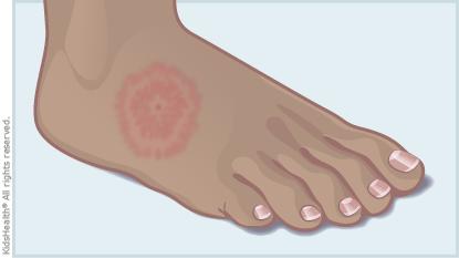 Lyme Disease.