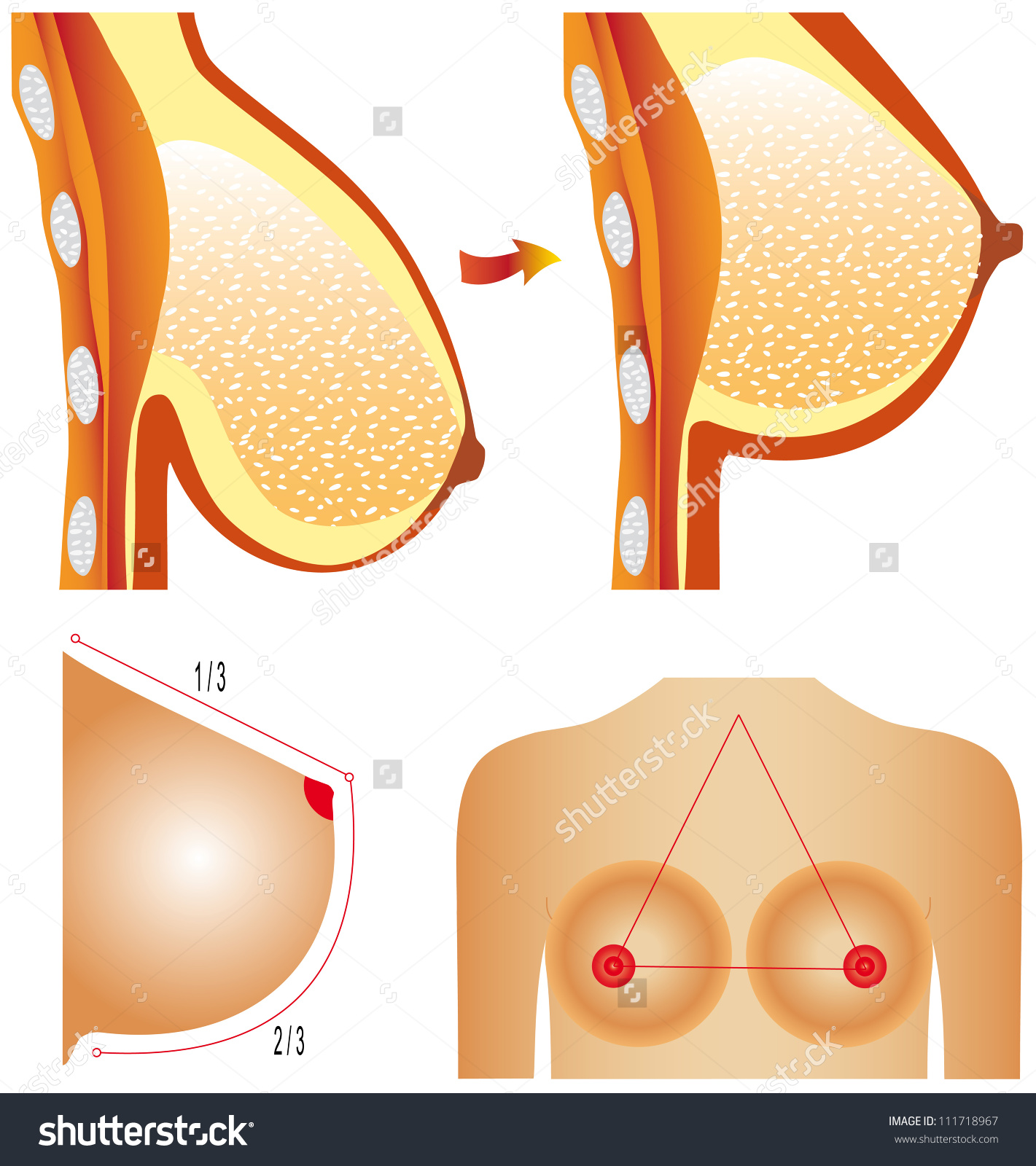 Plastic Surgery Breast Tits Correction Plastic Stock Vector.