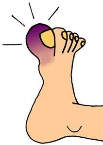 Broken Toe Clipart.