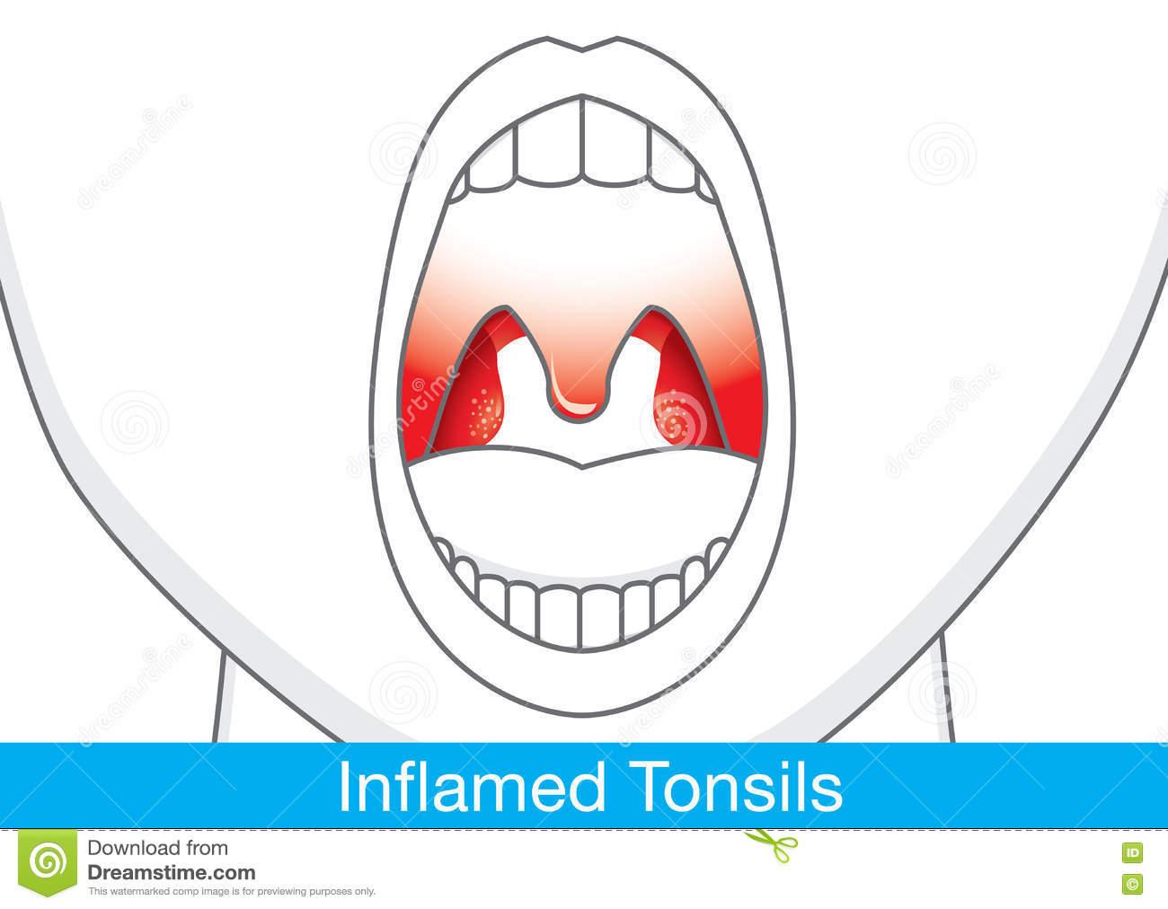 Tonsils Stock Illustrations.