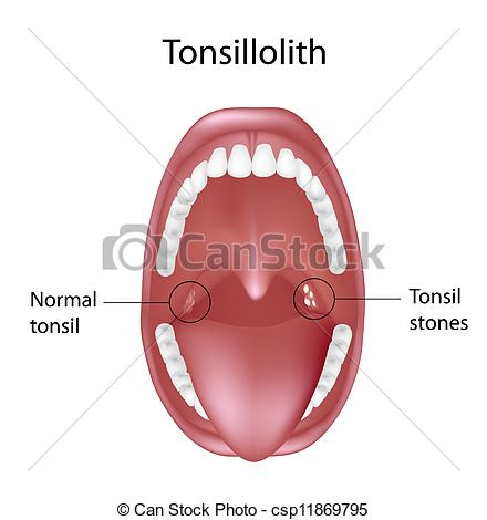 Tonsil Illustrations and Clip Art. 140 Tonsil royalty free.