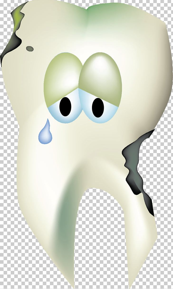 Tooth Decay Human Tooth Dentistry PNG, Clipart, Clip Art.