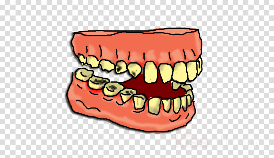 Download tooth decay clipart Tooth decay Human tooth Clip art.