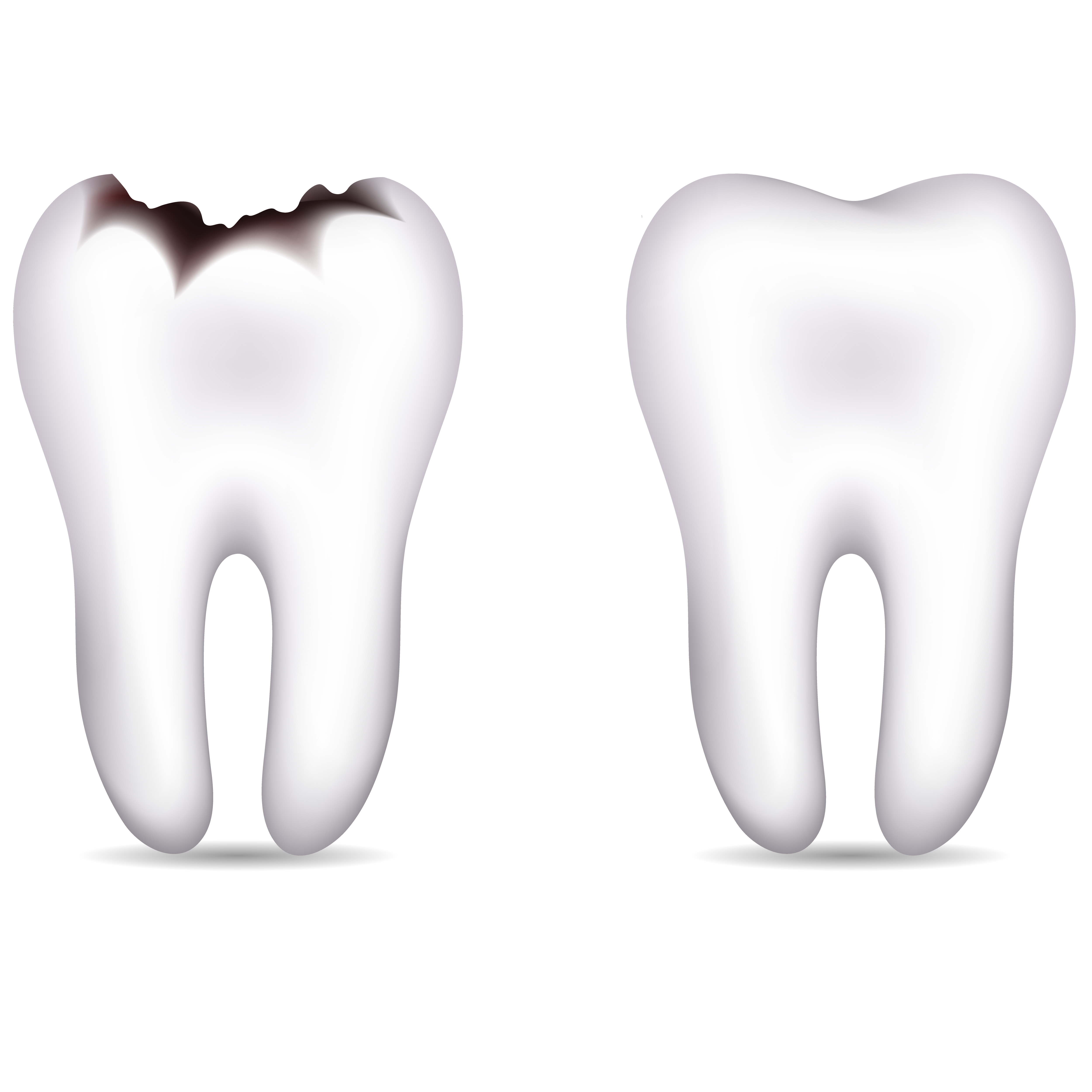 Tooth Pictures.