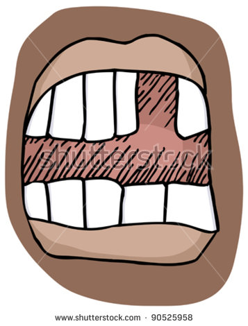 Tooth gap clipart.