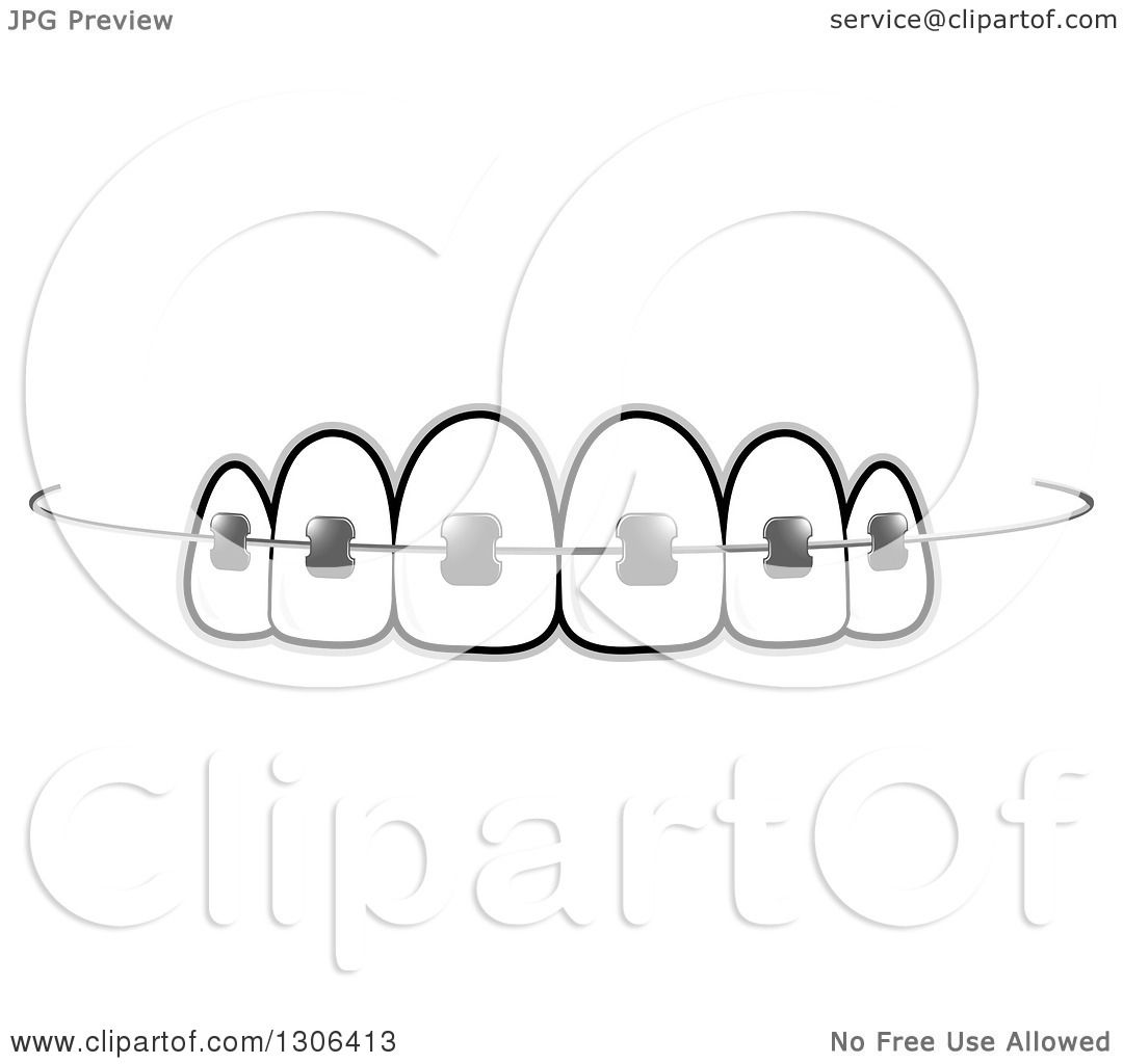 Clipart of Teeth and Dental Braces.