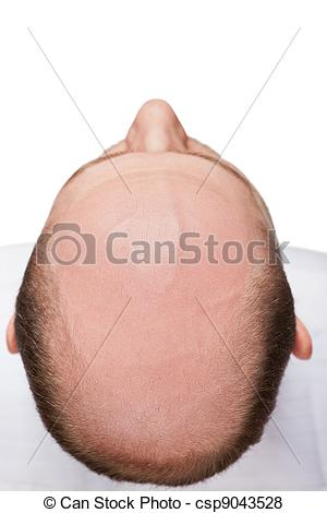 Pictures of Bald man head.