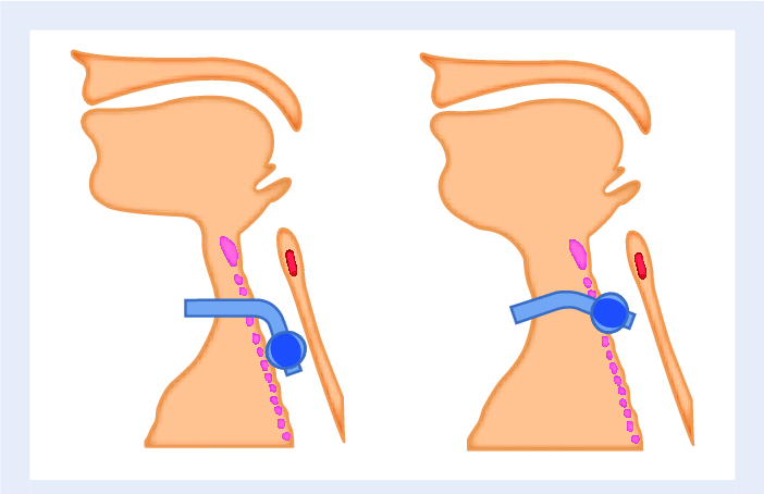 Standard tracheostomy tubes inserted into large necks may.