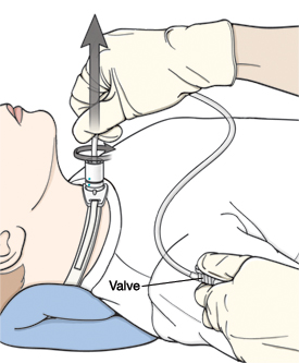 When Your Child Needs a Tracheostomy: Suctioning.