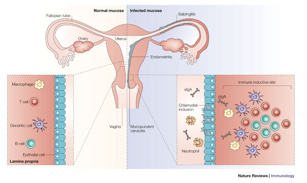Figure 1 : Immunology of Chlamydia infection: implications for a.