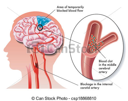 Vector Clip Art of TIA (transient ischemic attack).