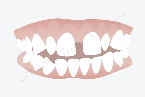 Tooth Gap PNG Transparent Tooth Gap.PNG Images..