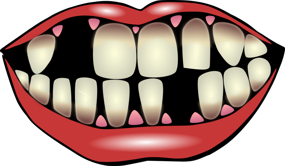 Missing Tooth Png & Free Missing Tooth.png Transparent.