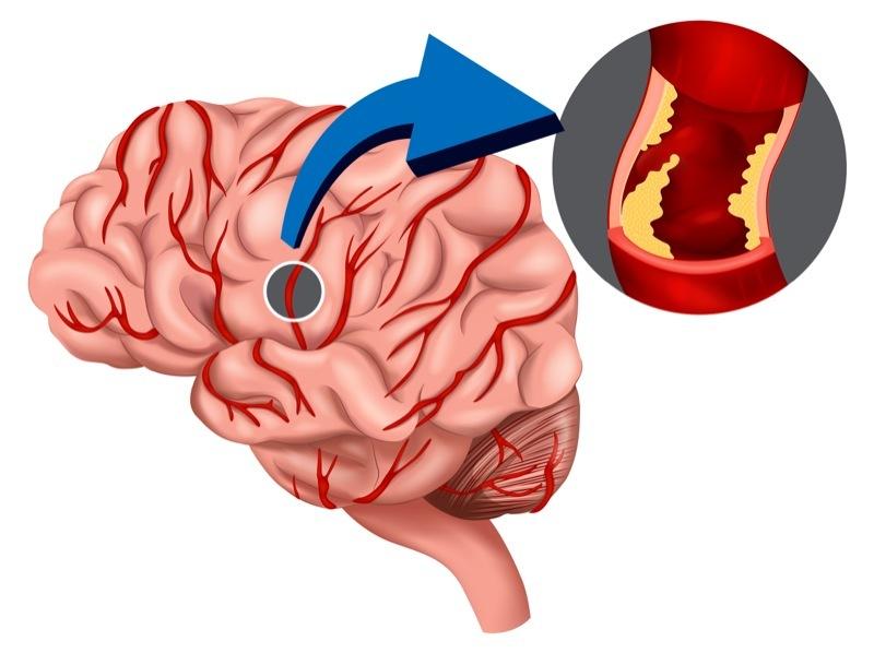Brain Injury.