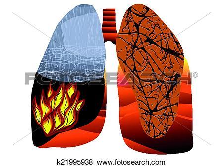Tuberculosis Clip Art Vector Graphics. 328 tuberculosis EPS.