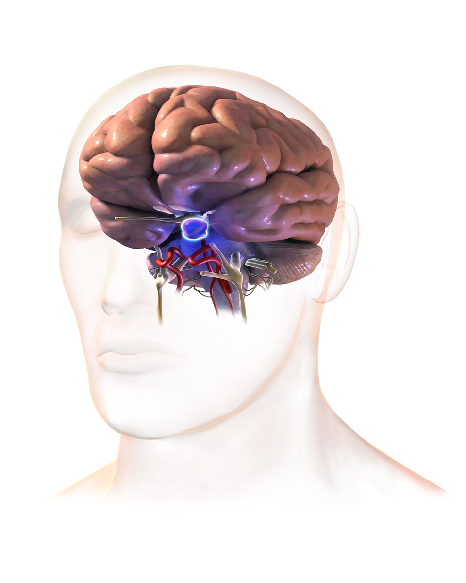 File:Pituitary Tumor.png.