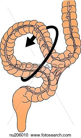 Stock Illustrations of The unattached loop of bowel twists causing.