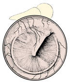 Clipart of Normal tympanic membrane as viewed through an otoscope.
