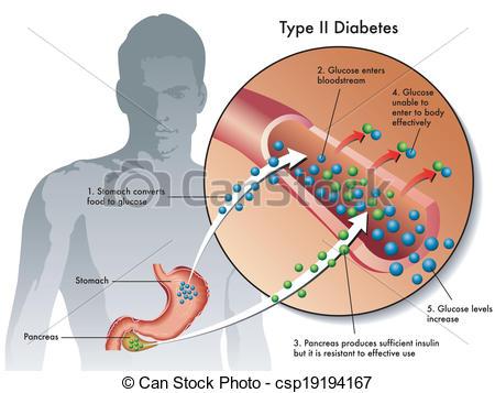 Type 2 Diabetes Clipart.