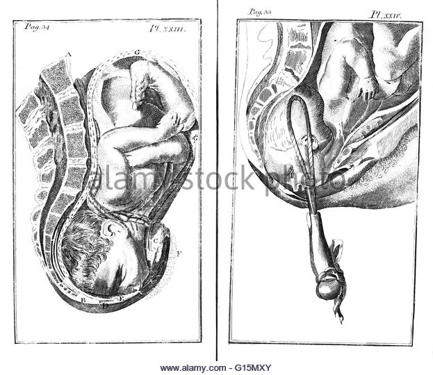 Forceps Birth Stock Photos & Forceps Birth Stock Images.