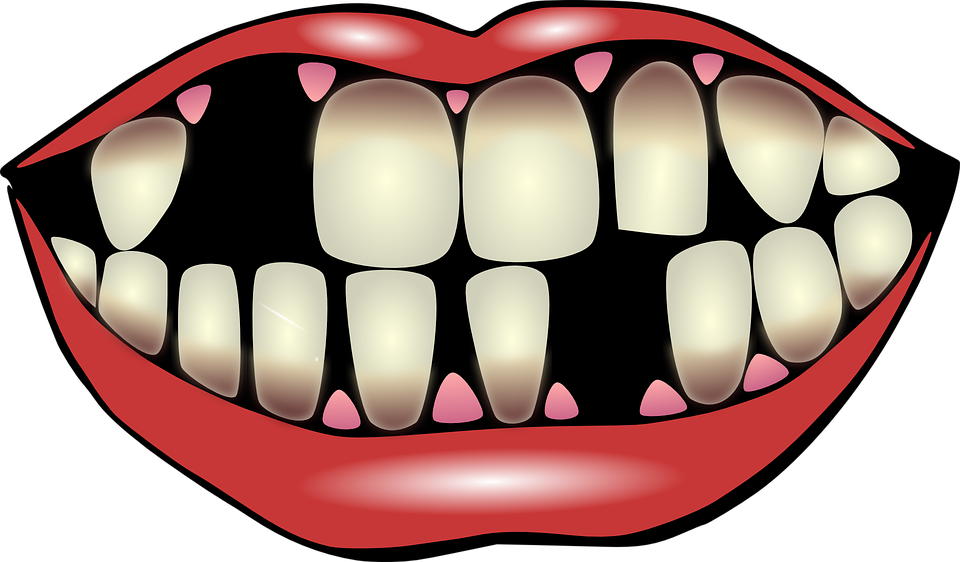 Mouth clipart unhealthy tooth, Mouth unhealthy tooth.