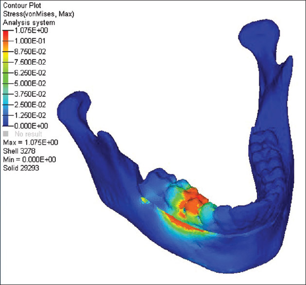 Stress distribution patterns of implant supported overdentures.