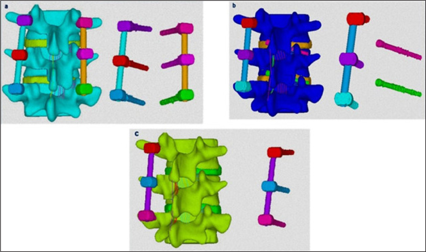 Finite Element Analysis of 3 Posterior Fixation Techniques in the.