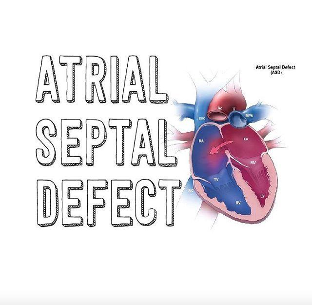 """Über 1.000 Ideen zu """"Atrial Septal Defect auf Pinterest."""
