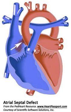 ASD Heart Surgery in India.