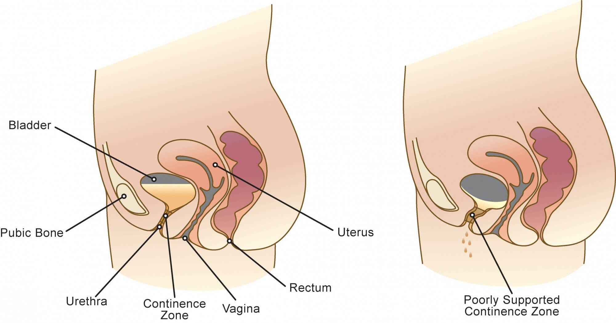 Stress Urinary Incontinence.
