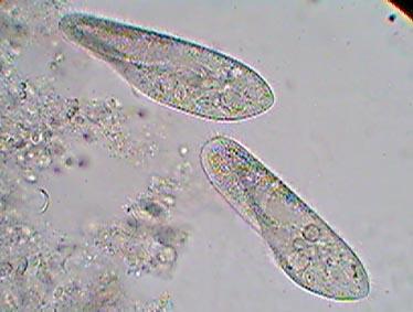paramecium.jpg.