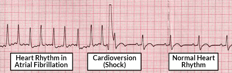About Synchronized Cardioversion.